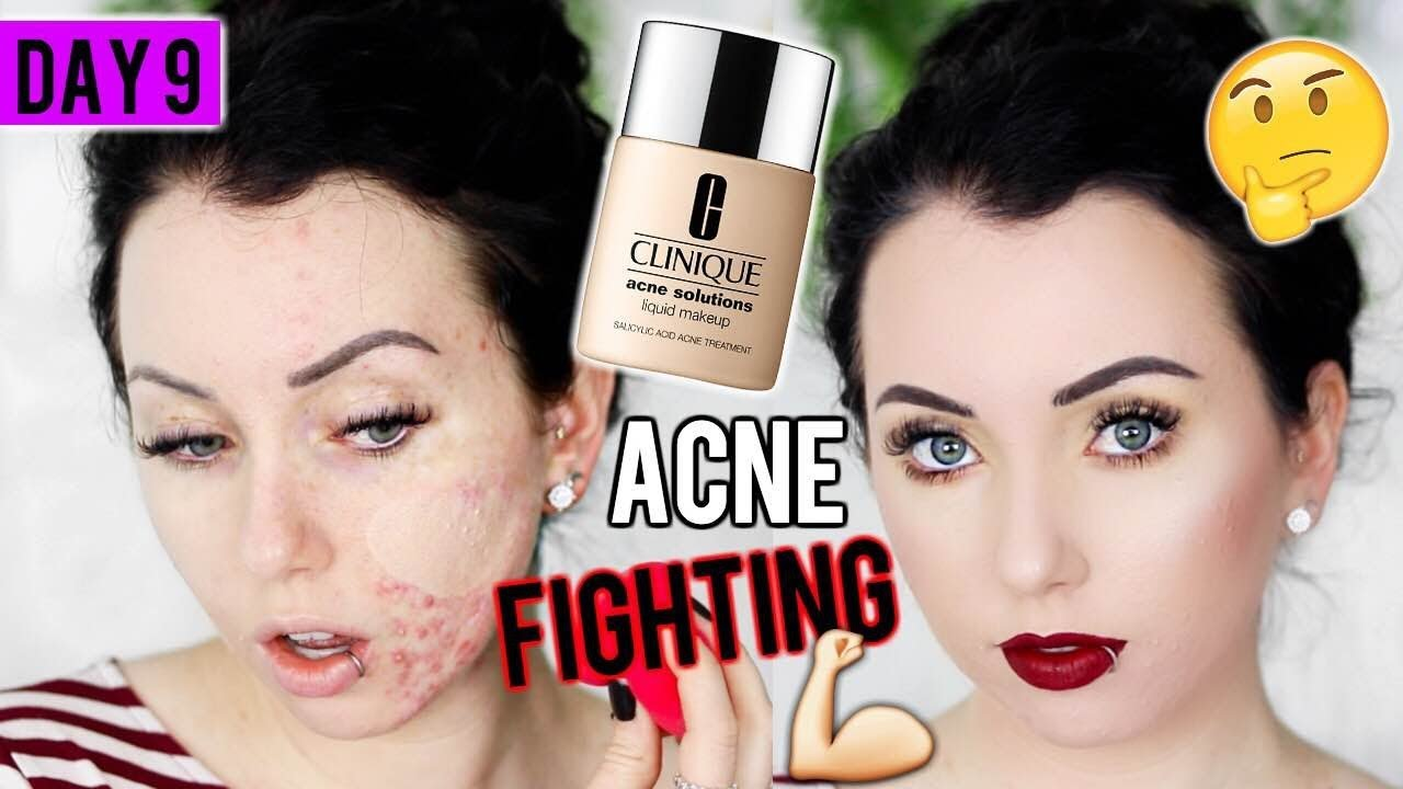clinique acne solutions liquid makeup review